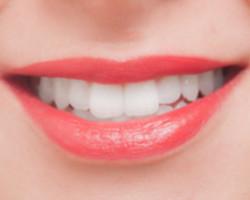 センター北の歯科なら|アリビオ矯正歯科|理想の白い歯で手に入れる理想の自分