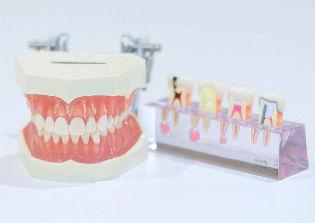 矯正歯科をセンター南・北でお探しなら明瞭な料金で安心の「アリビオ矯正歯科クリニック」~歯並びや噛み合わせのチェック方法!~