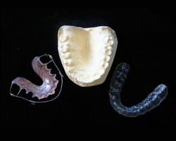 都筑でマウスピース・インプラントなら|アリビオ矯正歯科|「目立たない矯正」をご希望の方へ