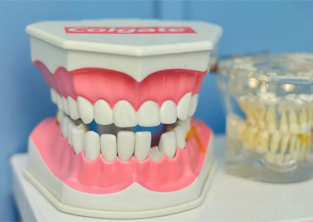 審美歯科をセンター南・センター北付近でお探しの方はアリビオ矯正歯科クリニックへ!小児にも対応可能で個々に適したおすすめの治療法をご提案~歯が黄ばむ原因~