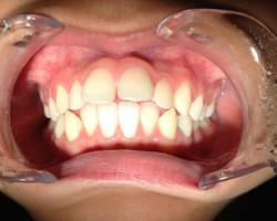 センター北で歯科をお探しなら|アリビオ矯正歯科|歯周病のときの矯正治療について