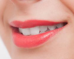 都筑にある歯科クリニックなら|アリビオ矯正歯科|歯並び美人は口元美人
