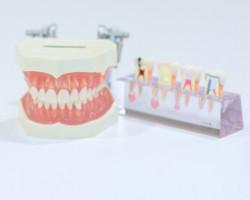 マウスピース・インプラントなら|アリビオ矯正歯科|インビザラインとは?