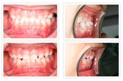 乳歯の矯正