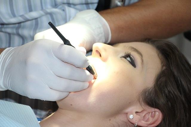 茶渋などによる歯の黄ばみ・ステインの対策とは?