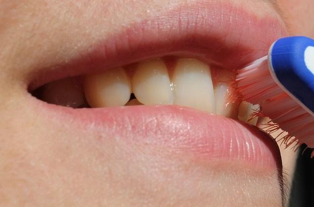 矯正治療中の正しい歯みがき方法とは?