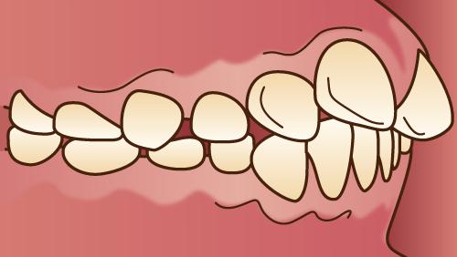 悪い歯並びの状態-上顎前突-上顎が前に突出した状態