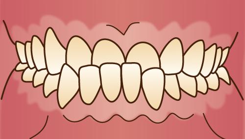 歯並びが悪い状態-下顎前突-下顎が突出した状態