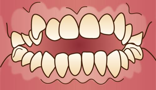 悪い歯並びの状態-開咬-前後の歯が重ならない状態