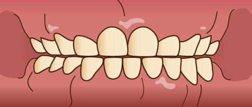 悪い歯並びの状態-切端咬合-上の歯と下の歯がカチカチ当たる状態