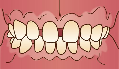 歯並びが悪い状態-すきっ歯