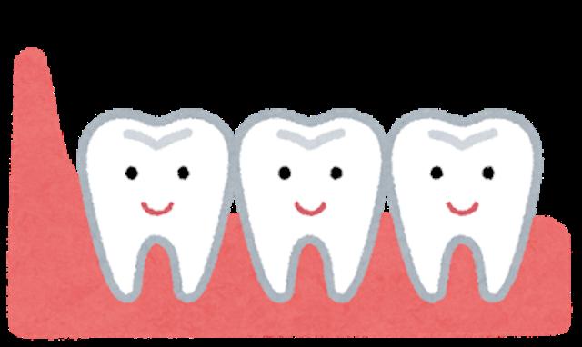 歯列矯正治療と親知らずの関係