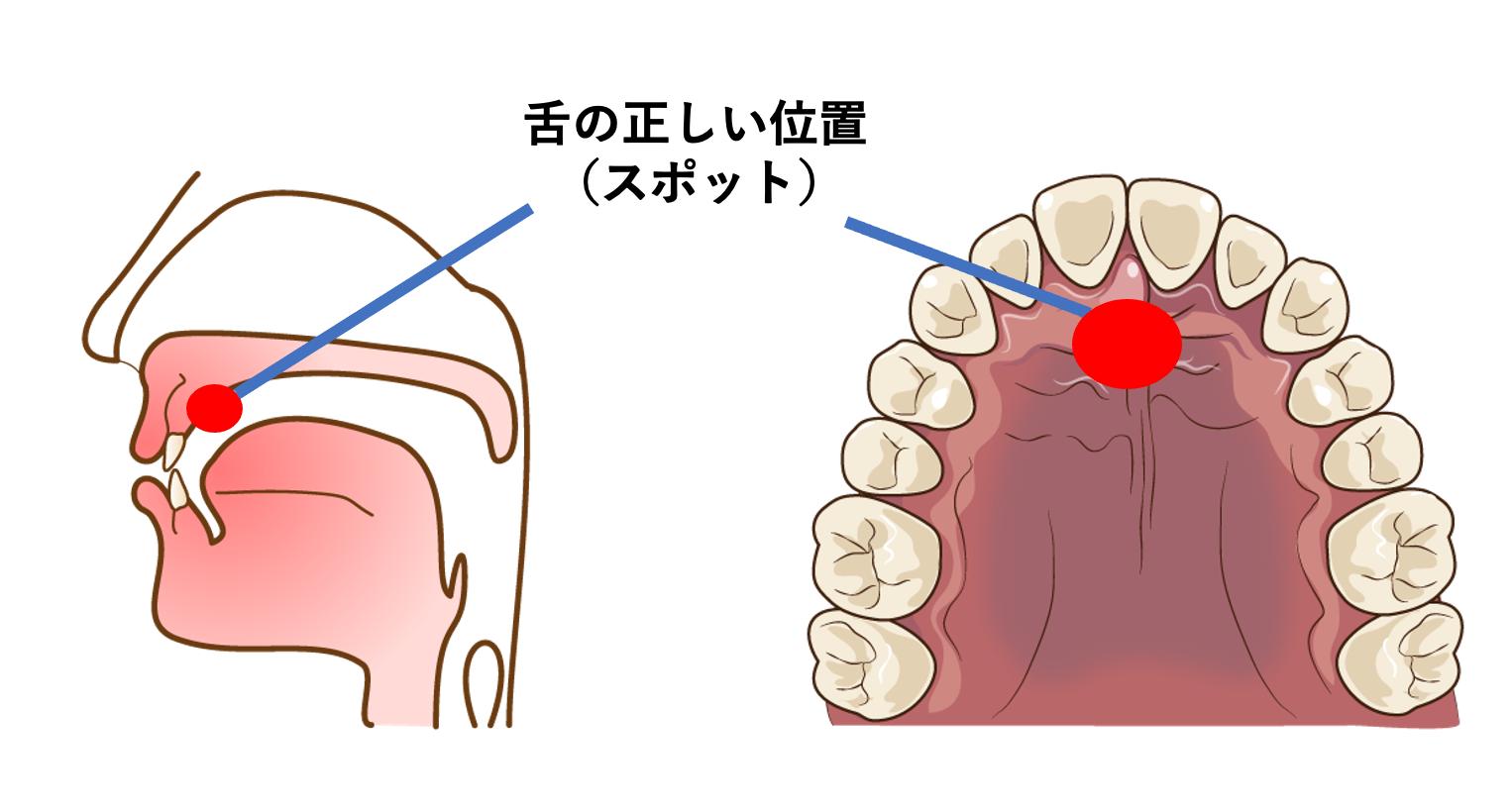 舌の正しい位置の画像