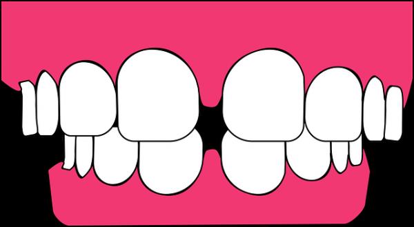 歯周病を放置するとどうなってしまうのか