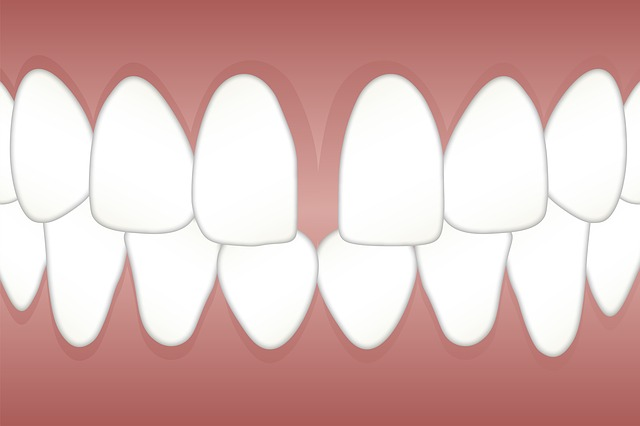 「すきっ歯」の原因と改善方法