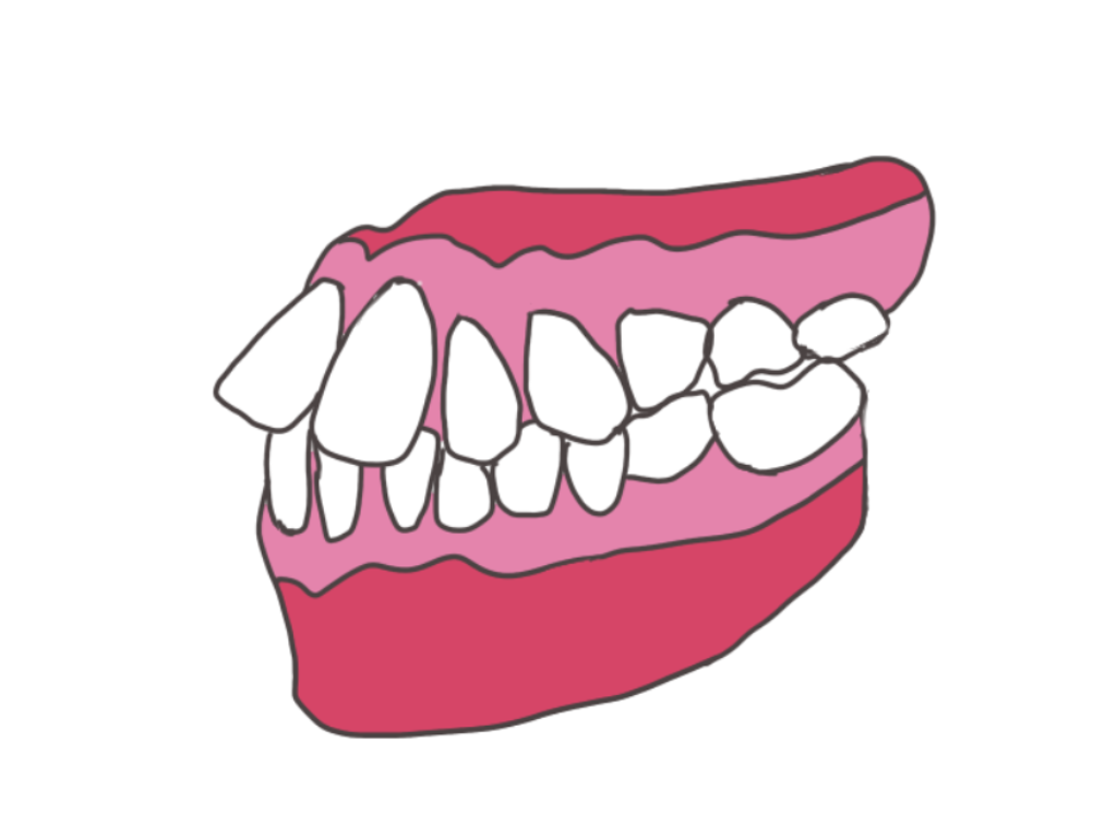 出っ歯に開咬…矯正治療をおすすめする悪い歯並び5種類