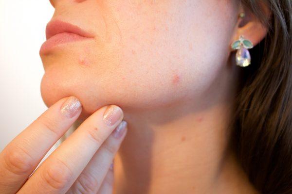 顎変形症による顎のズレ