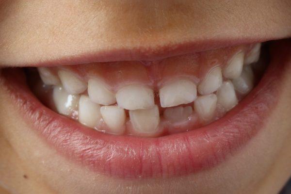 歯並び・噛み合わせの乱れは自分で治せる?
