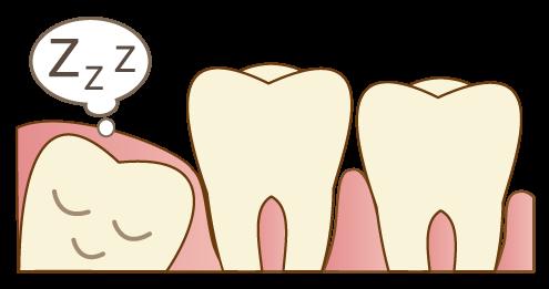 歯ぐきの下で眠っている埋伏歯
