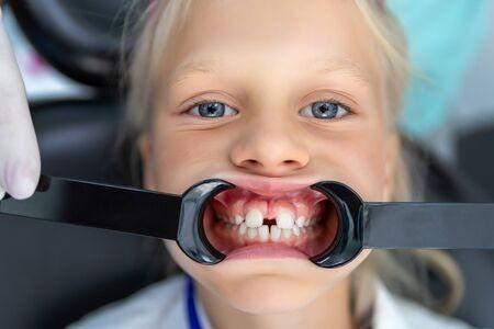すきっ歯な女の子