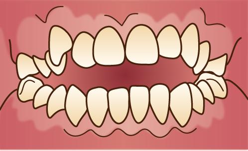 歯並びが悪い状態-開咬-オープンバイトの画像