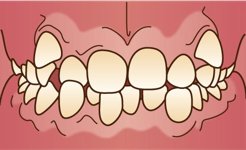 叢生-乱ぐい歯-八重歯の歯並びが悪い画像