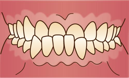 歯並びが悪い状態-下顎前突-受け口-反対咬合の画像