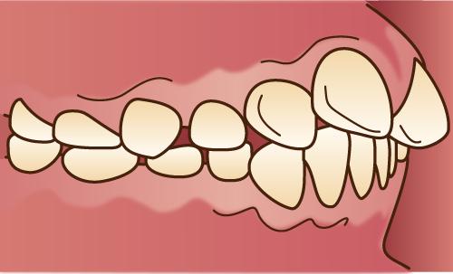 歯並びが悪い状態-上顎前突-出っ歯の画像
