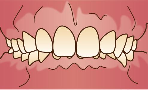 悪い歯並びの状態-過蓋咬合-ディープバイト-噛み合わせが深い画像