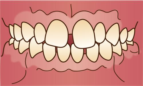 正中離開-すきっ歯-歯並びが悪い状態の画像
