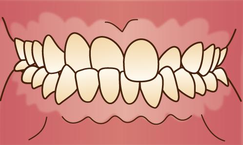 歯並びが悪い状態-交差咬合-クロスバイト-噛み合わせのズレの画像