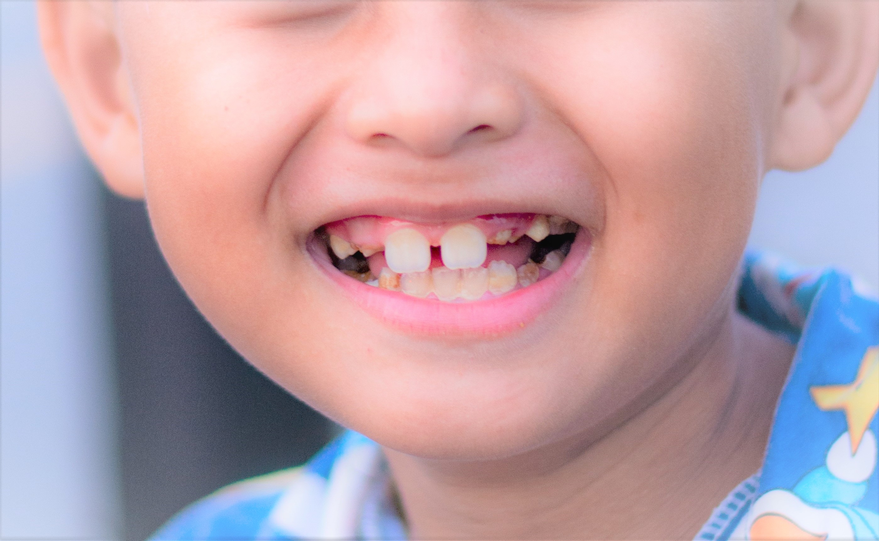 こどもの歯並びが悪い|症状別に矯正開始時期の目安をご案内します