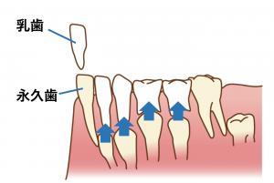 乳歯が抜ける前に永久歯が生えてきたら【歯並びへの影響】